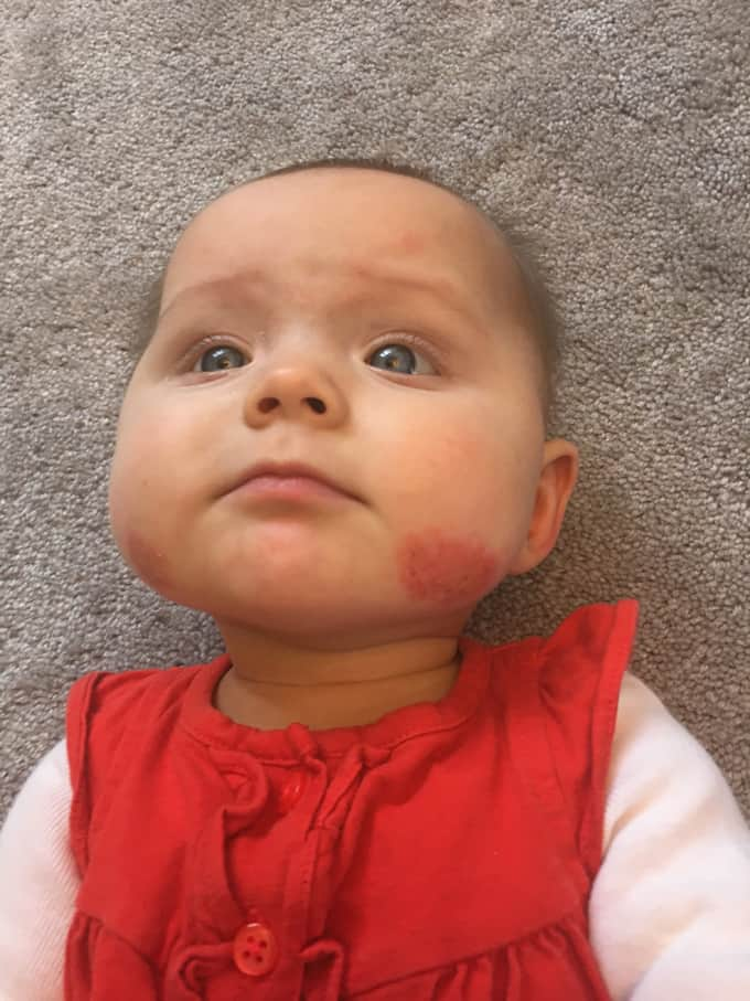 Baby rash